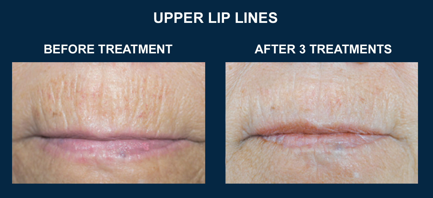 how to stop wrinkles on lips