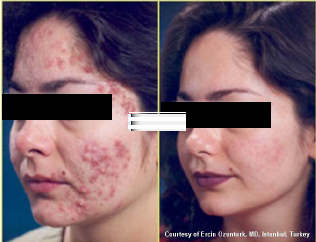 Acne before-and-after